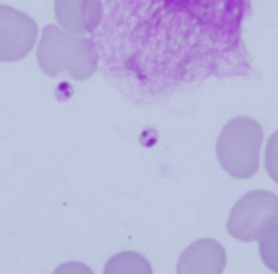 leishmania.jpg